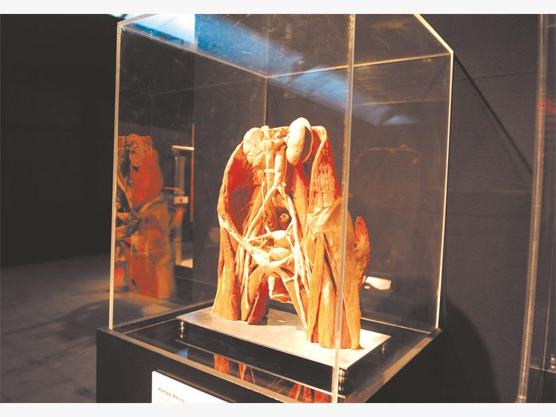 One of the exhibitions at the  'Body Worlds and the Cycle of Life' exhibition. Picture: Tracy lee Stark