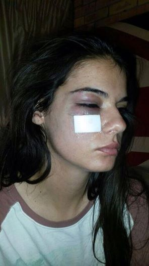 Irini Agathagelou ,21, has claimed she was beaten by a rugby player at the Varsity Cup Final. Picture: Supplied