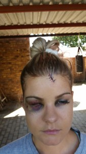 Natalie Spence sustained a swollen eye and other head injuries due to being allegedly beaten up by a man in the Galleria. Pic: Boksburg Advertiser.