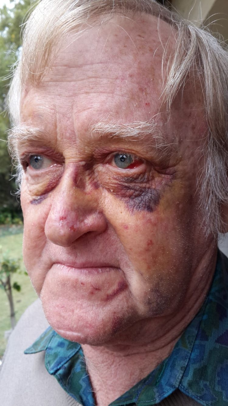 Douglas Edwards (70) suffered a fractured jaw and broken ribs after he was severely assaulted in a road rage episode. Pic: Rekord East