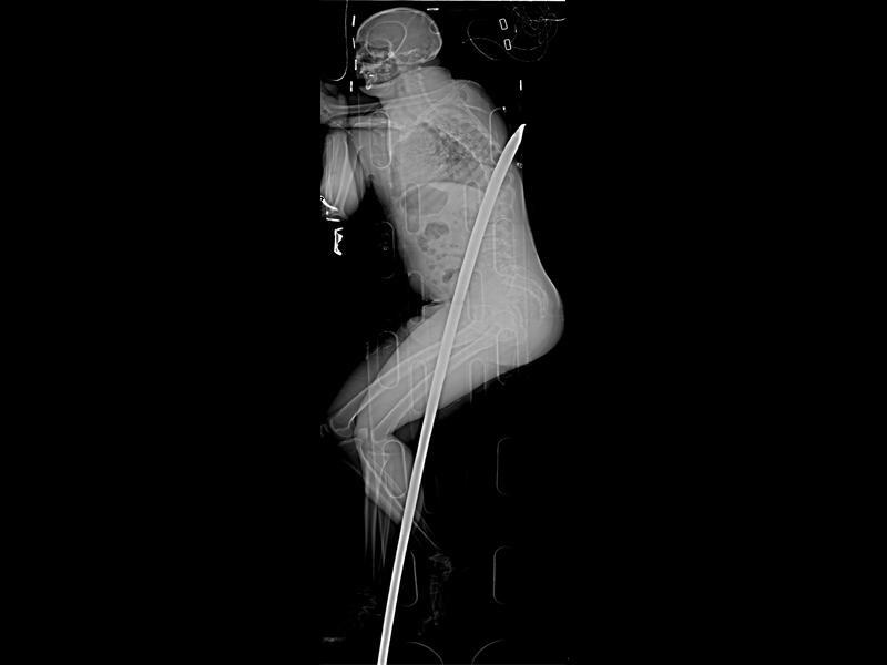 Gauteng man survives crowbar impalement
