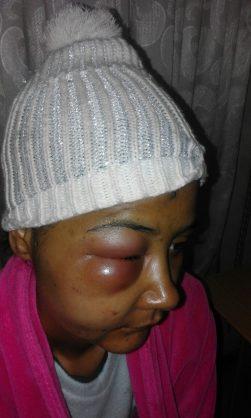Woman beaten by would-be housebreaker