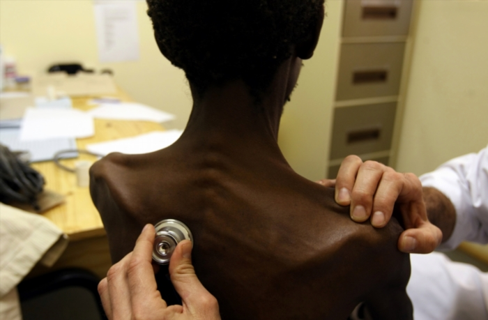 A doctor examines a patient with Tuberculosis. (Photo by Gallo Images/Sunday Times/James Oatway)