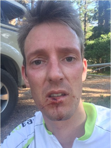 Darryl Colenbrander suffered lacerations and bruises to his face, arms and legs from jumping into the ravine to escape from the suspect. Picture: Supplied
