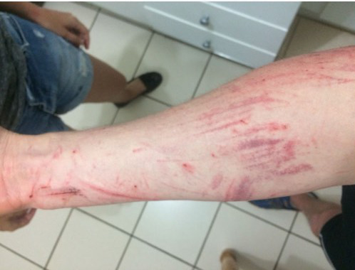 Darryl Colenbrander suffered scratches from jumping into the ravine to escape from the suspect. Picture: Supplied