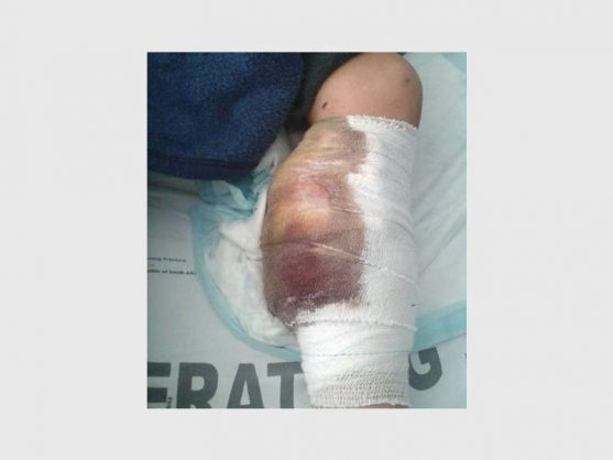 UPDATE: Anonymous donor donates R68k to save child's mutilated leg