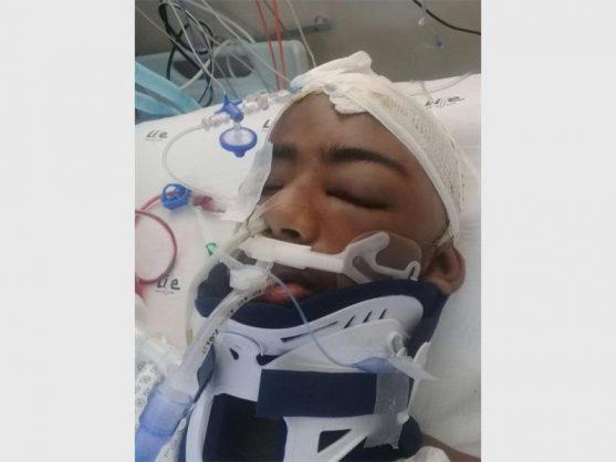 Aaryan Joshua after an operation on his brain on Sunday, 10 December.