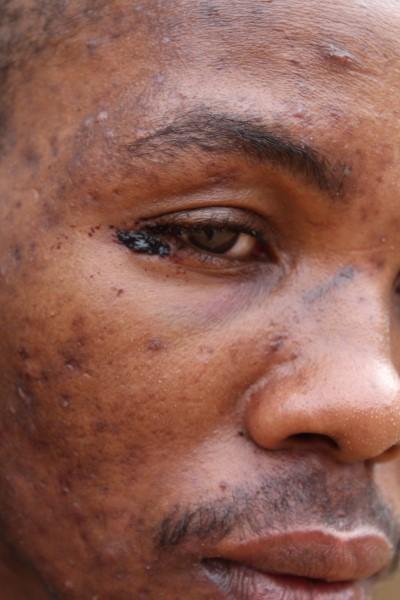 Assault victim Banele Mdingazwe's injuries.