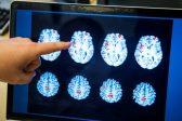 Head injury boosts dementia risk: study