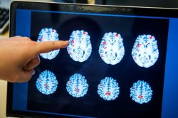 With dementia cases set to triple, WHO issues guide to cut risk