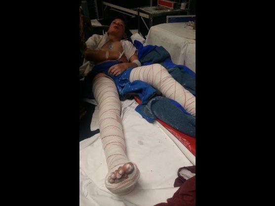 Riaan Conradie recovering in hospital. Photo: Facebook