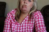 Pretoria resident's lip tumour finally removed
