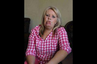 Pretoria woman with lip cancer to undergo surgery