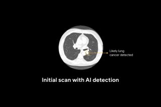 Artificial intelligence trained to identify lung cancer