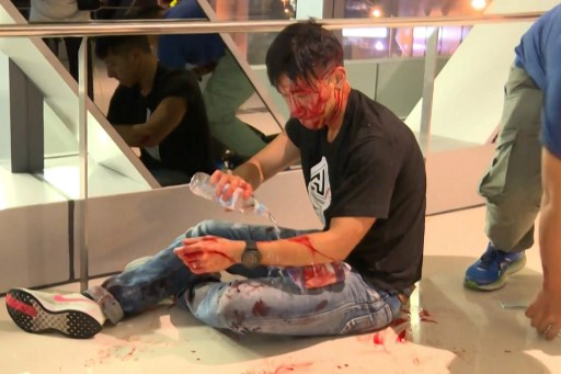 This frame grab taken from video recorded by Hong Kong broadcaster Now TV on July 21, 2019 and released to AFP on July 22 shows former sportscaster for local television TVB, Ryan Lau Chun Kong, bleeding after a mob of suspected triad gangsters attacked pro-democracy protesters returning from a demonstration earlier in the day, at Yuen Long train station in Hong Kong. Picture: Handout / NOW TV / AFP