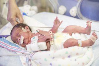 Let's talk donor expressed breast milk (DEBM)