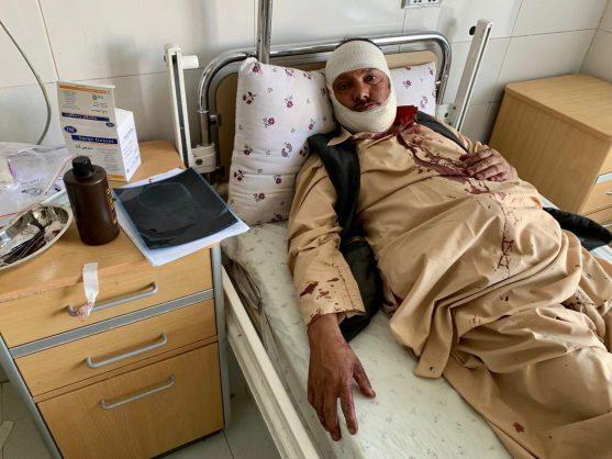 Taliban kill at least 26 in blast near Afghan presidential rally