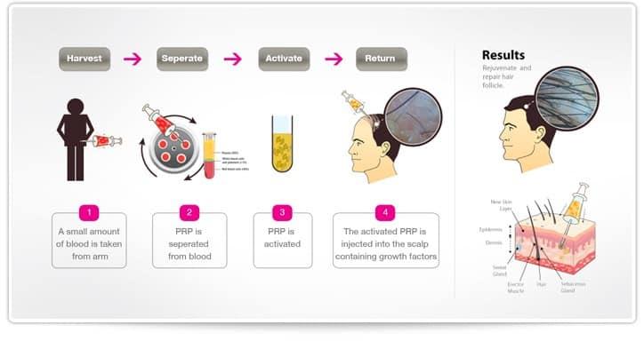 PRP- treatment