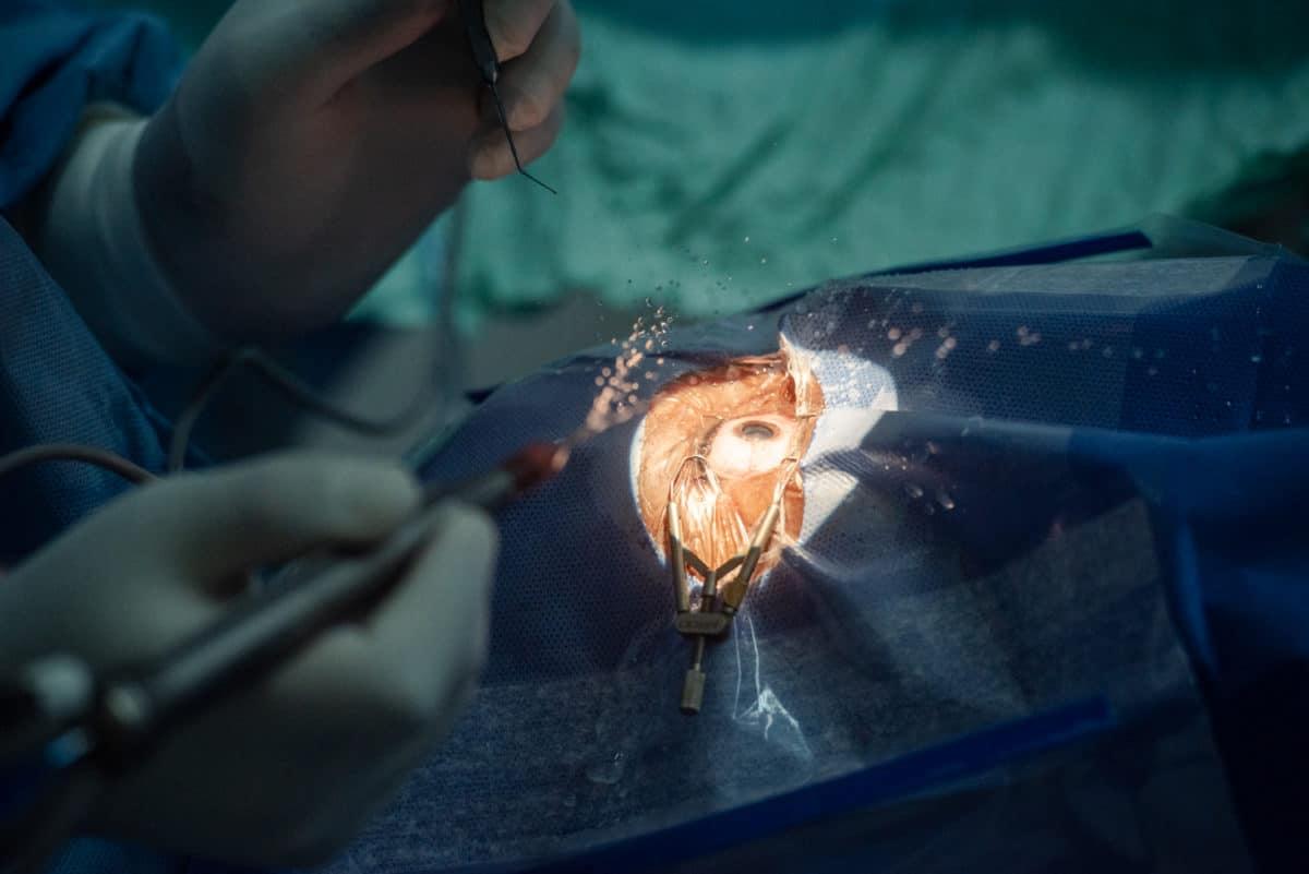 Cataract surgery Acornhoek